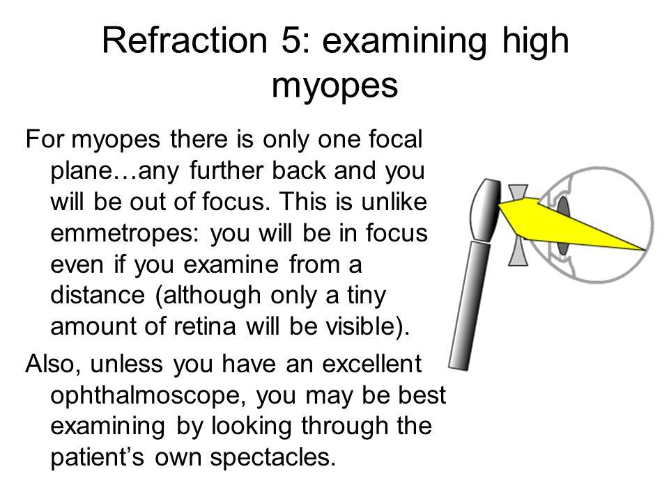 Refraction 5: examining high myopes
