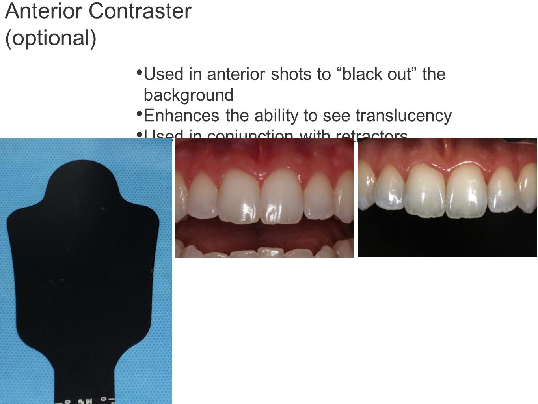 Anterior Contraster (optional)