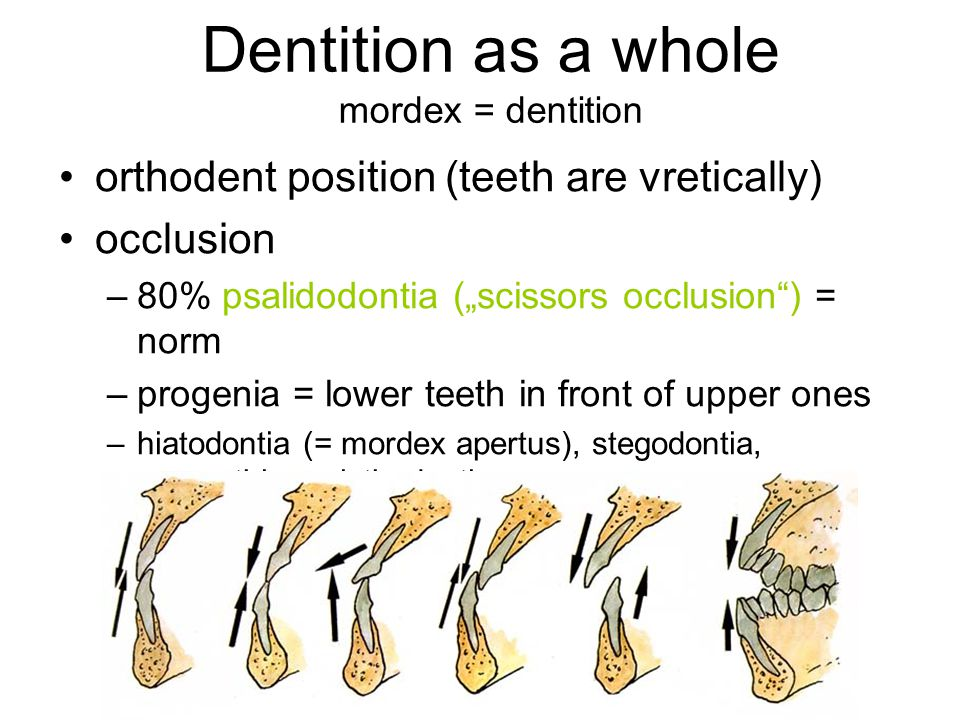 Dentition as a whole mordex = dentition