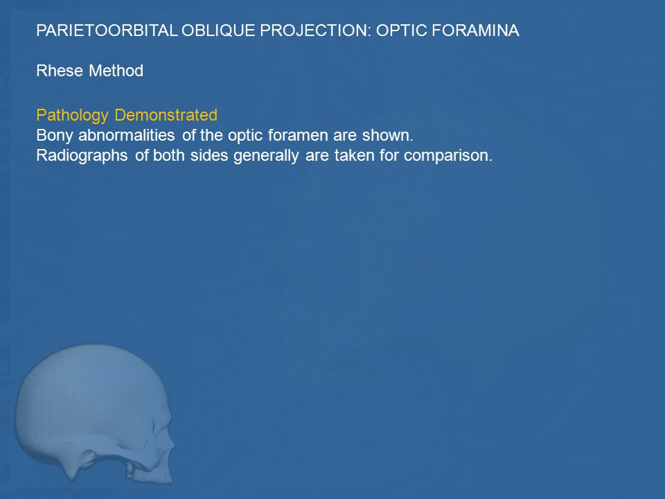 PARIETOORBITAL OBLIQUE PROJECTION: OPTIC FORAMINA
