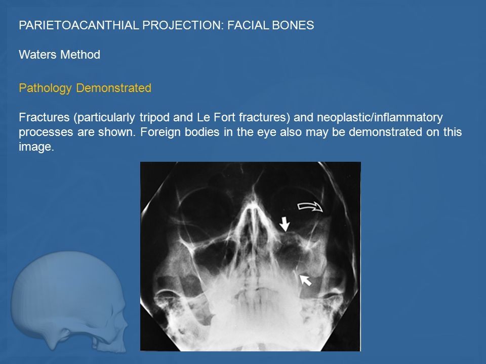 PARIETOACANTHIAL PROJECTION: FACIAL BONES