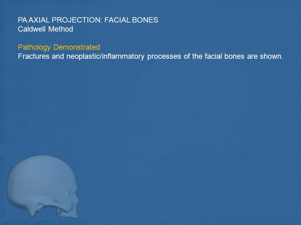 PA AXIAL PROJECTION: FACIAL BONES