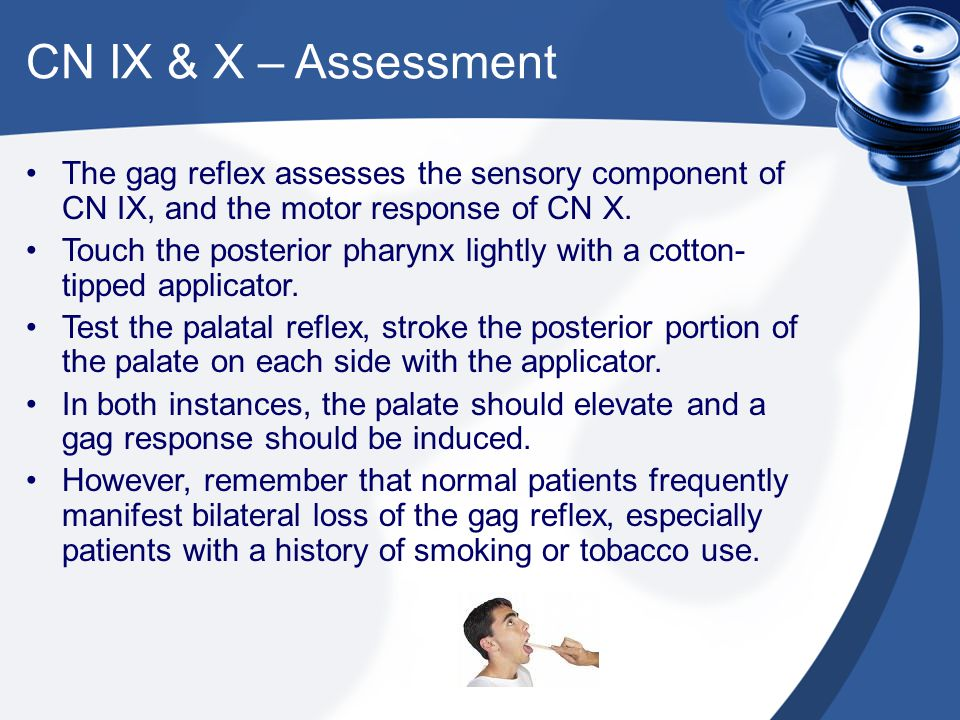 CN IX & X – Assessment The gag reflex assesses the sensory component of CN IX, and the motor response of CN X.