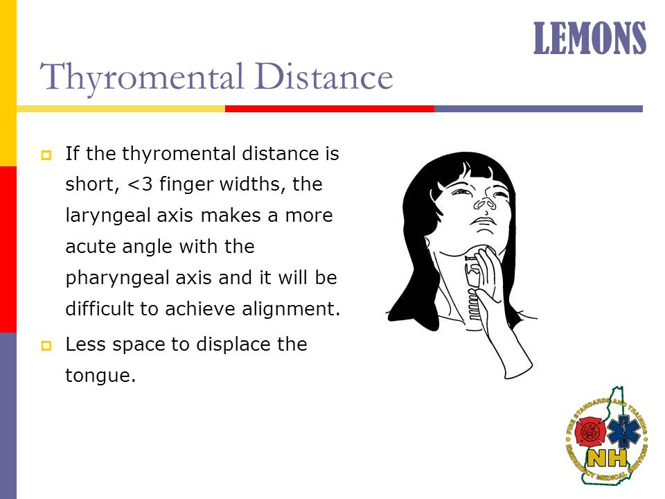 LEMONS Thyromental Distance