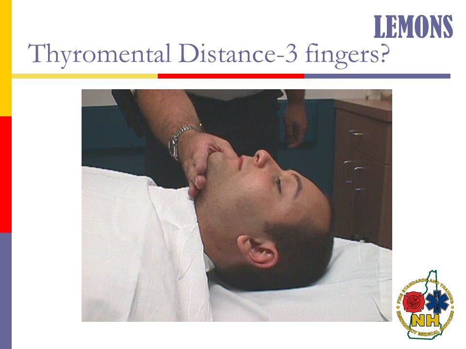 Thyromental Distance-3 fingers