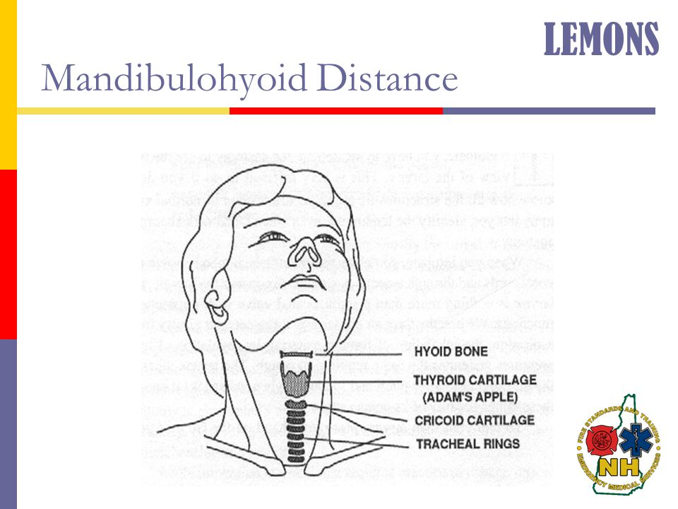 Mandibulohyoid Distance