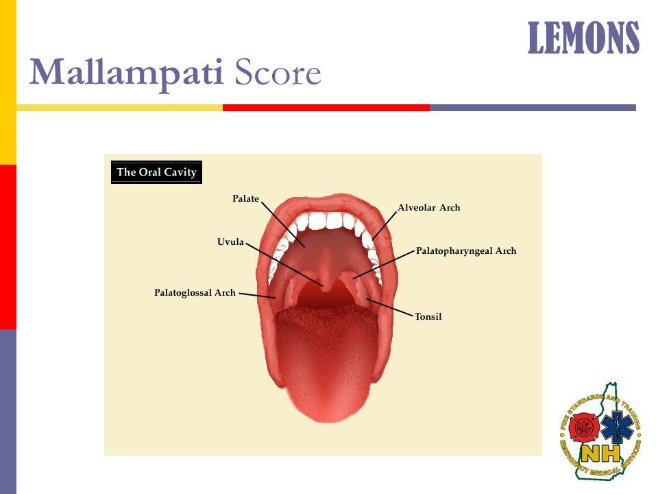 LEMONS Mallampati Score