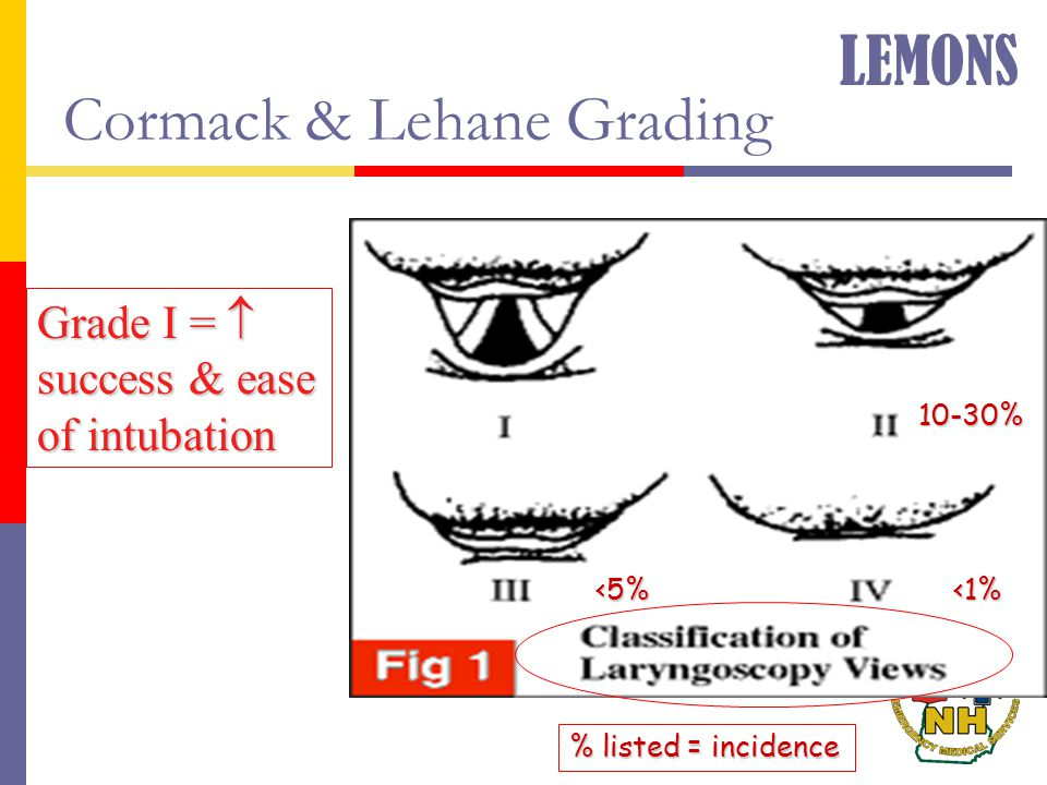 Cormack & Lehane Grading