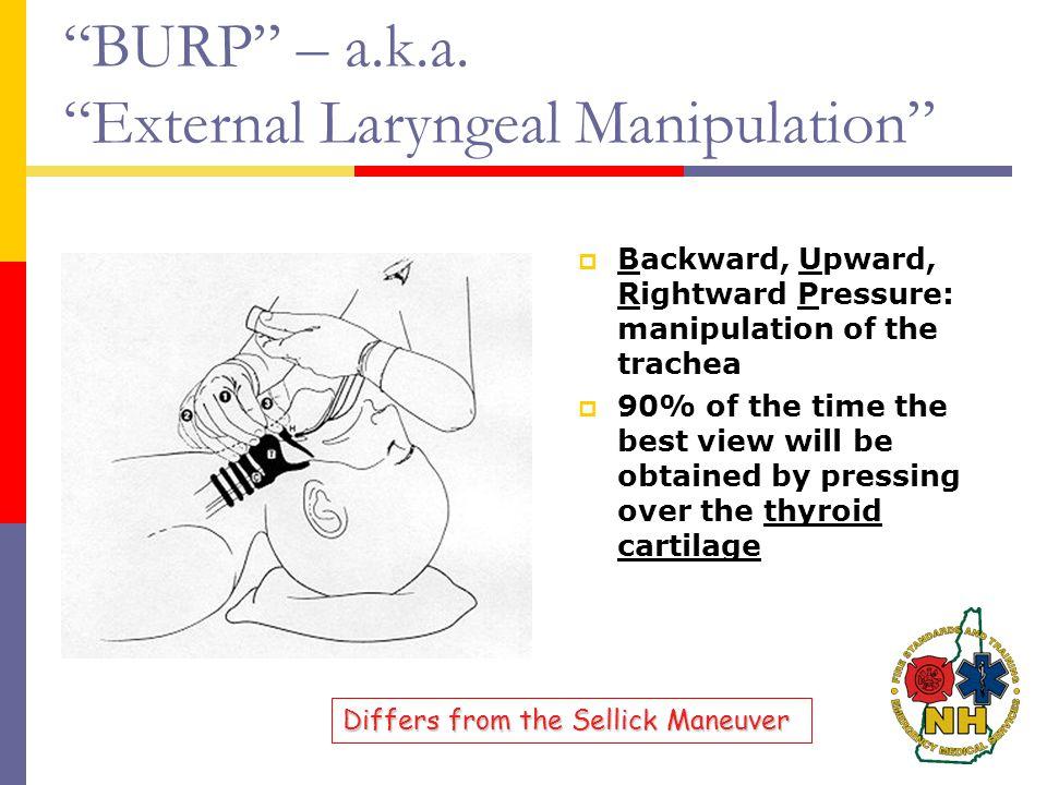 BURP – a.k.a. External Laryngeal Manipulation