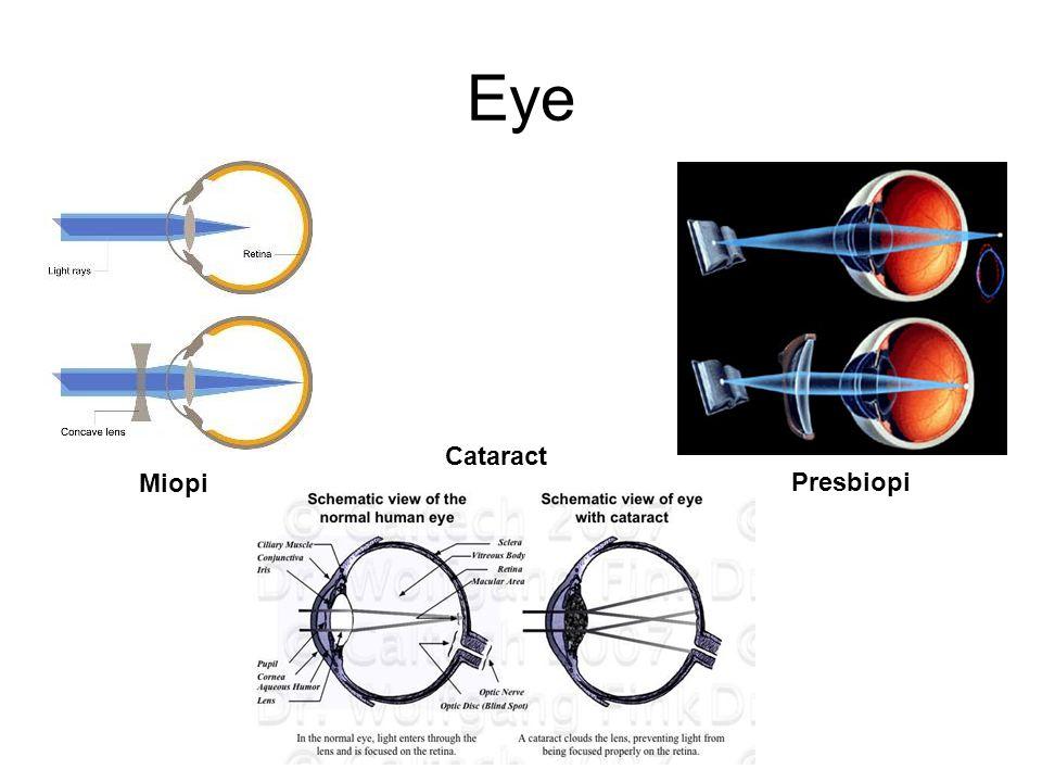 Eye Cataract Miopi Presbiopi
