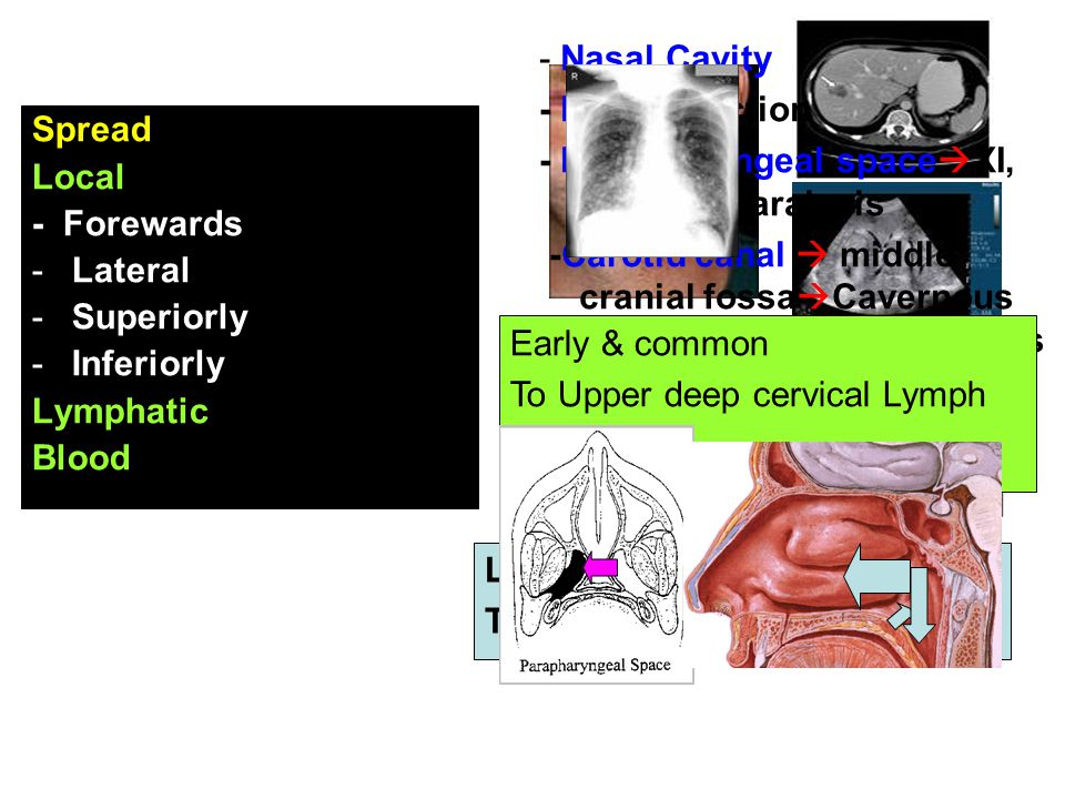 - Nasal Cavity - ET obstruction. - Parapharyngeal spaceXI, X, XI, XII paralysis.