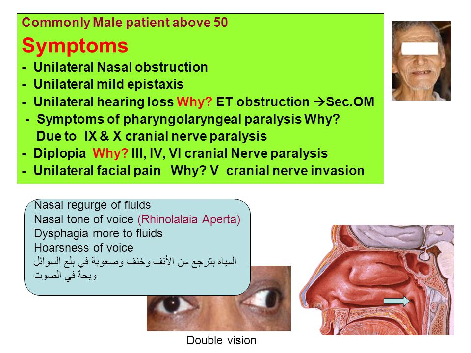 Symptoms Commonly Male patient above 50 - Unilateral Nasal obstruction
