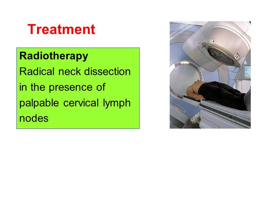 Treatment Radiotherapy Radical neck dissection in the presence of