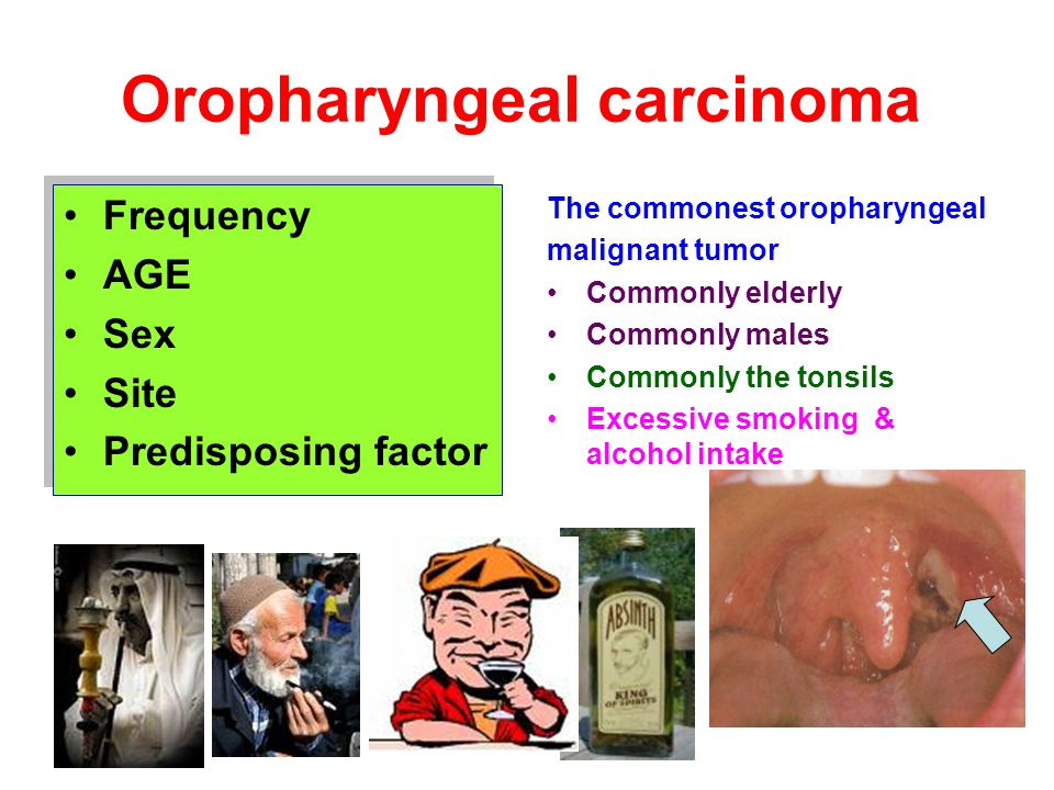 Oropharyngeal carcinoma