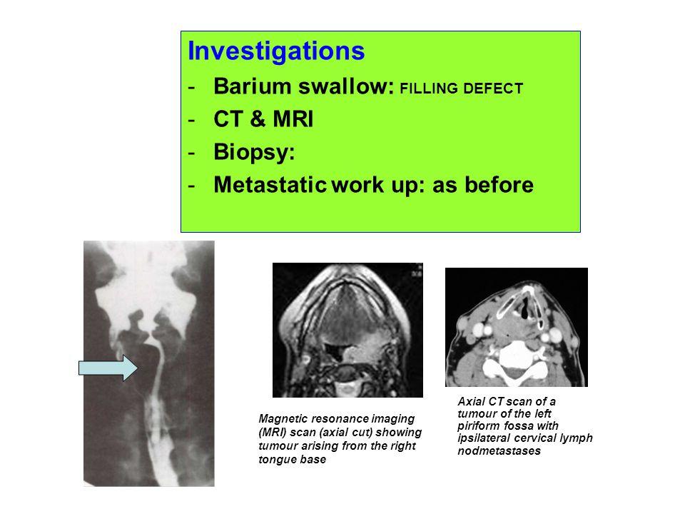 Investigations Barium swallow: FILLING DEFECT CT & MRI Biopsy: