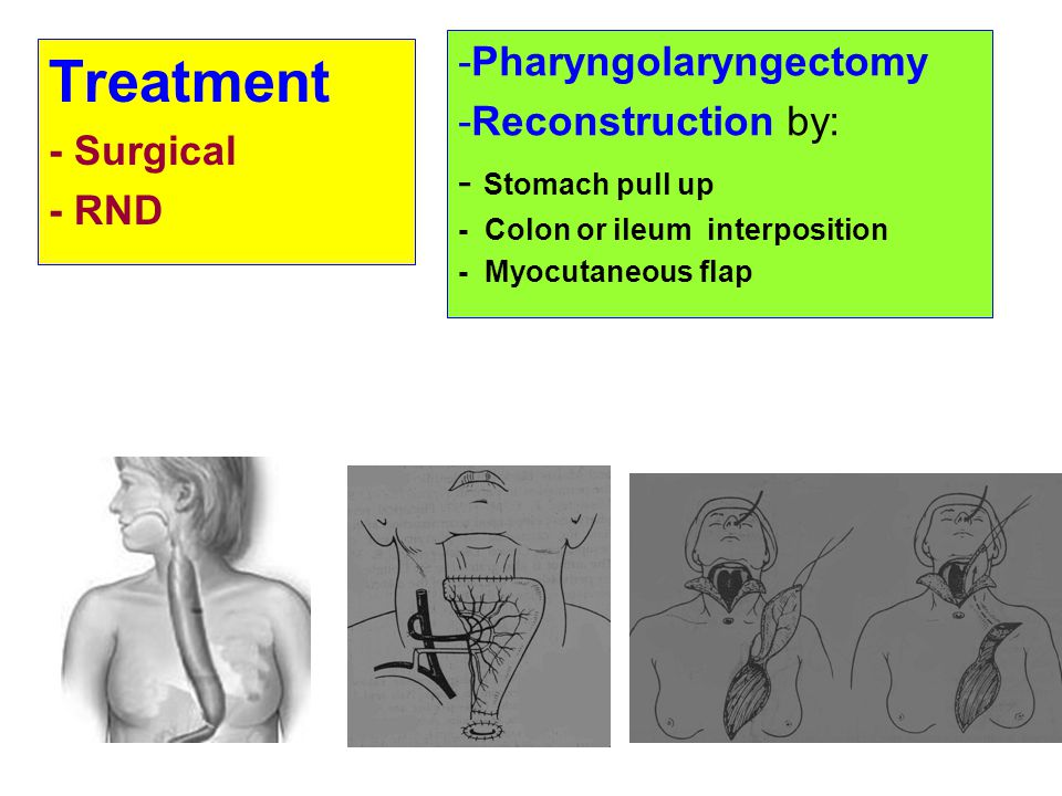 Treatment -Pharyngolaryngectomy -Reconstruction by: - Surgical