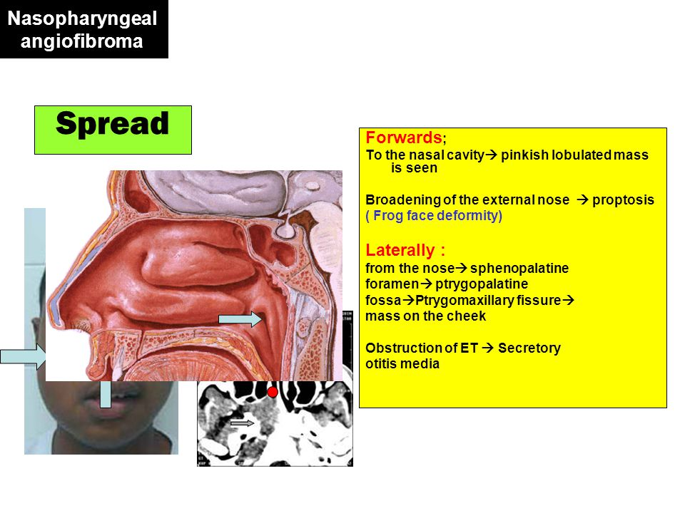 Nasopharyngeal angiofibroma