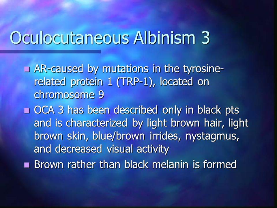 Oculocutaneous Albinism 3