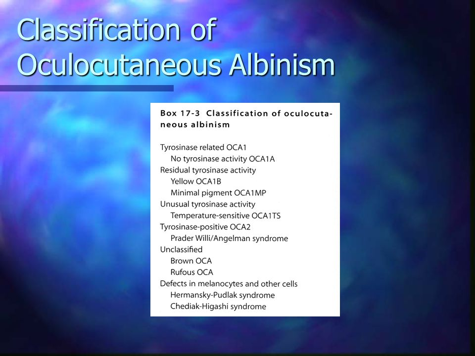 Classification of Oculocutaneous Albinism