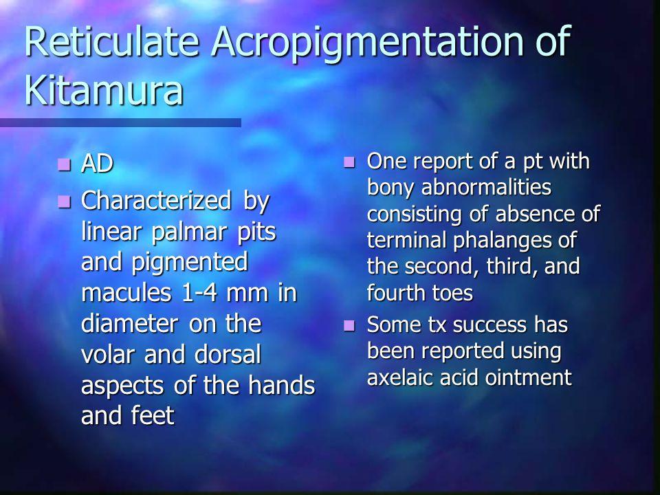 Reticulate Acropigmentation of Kitamura