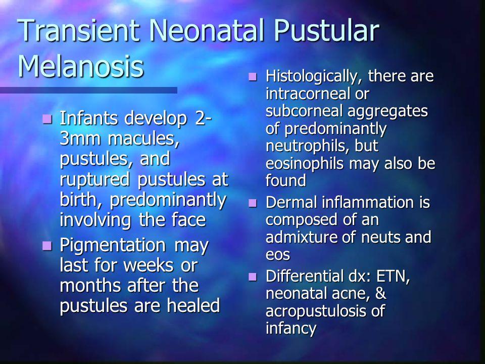 Transient Neonatal Pustular Melanosis