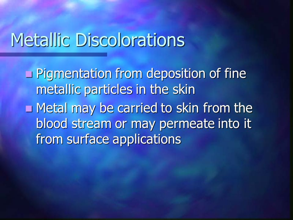 Metallic Discolorations