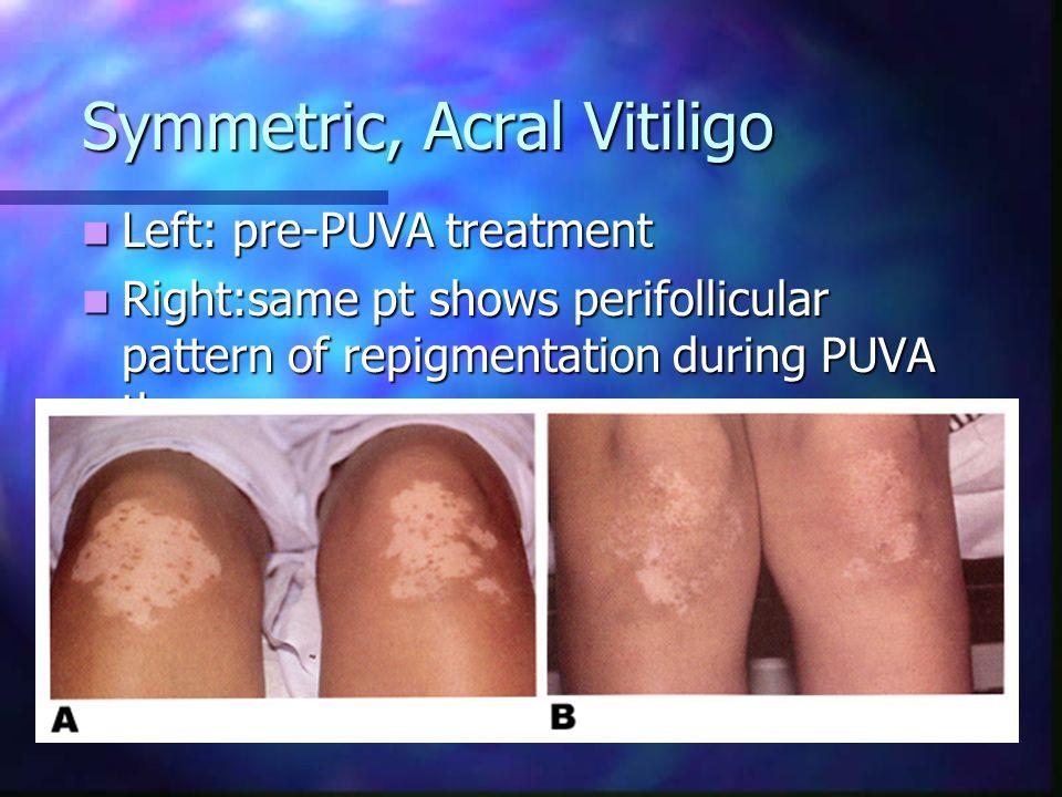 Symmetric, Acral Vitiligo