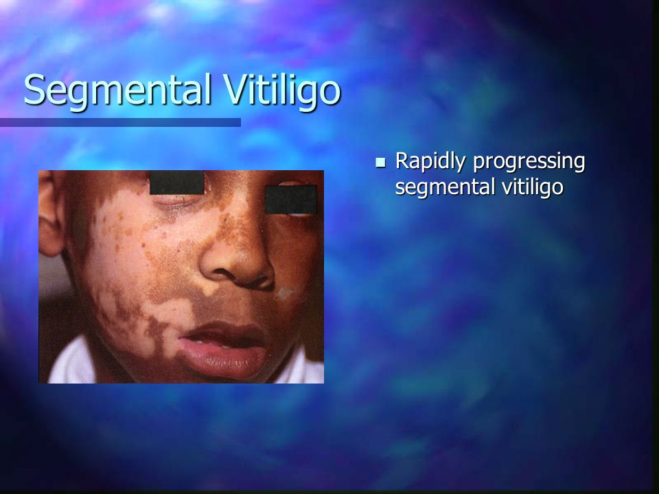 Segmental Vitiligo Rapidly progressing segmental vitiligo