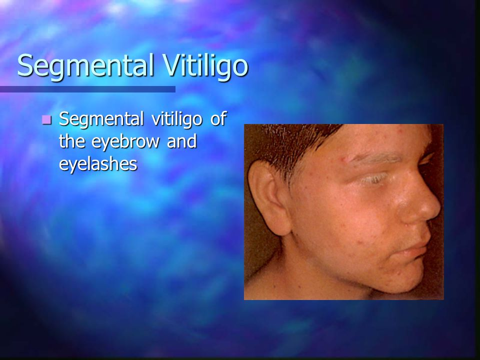 Segmental Vitiligo Segmental vitiligo of the eyebrow and eyelashes