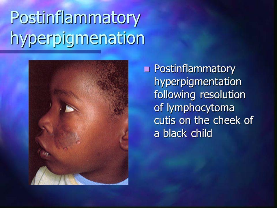 Postinflammatory hyperpigmenation