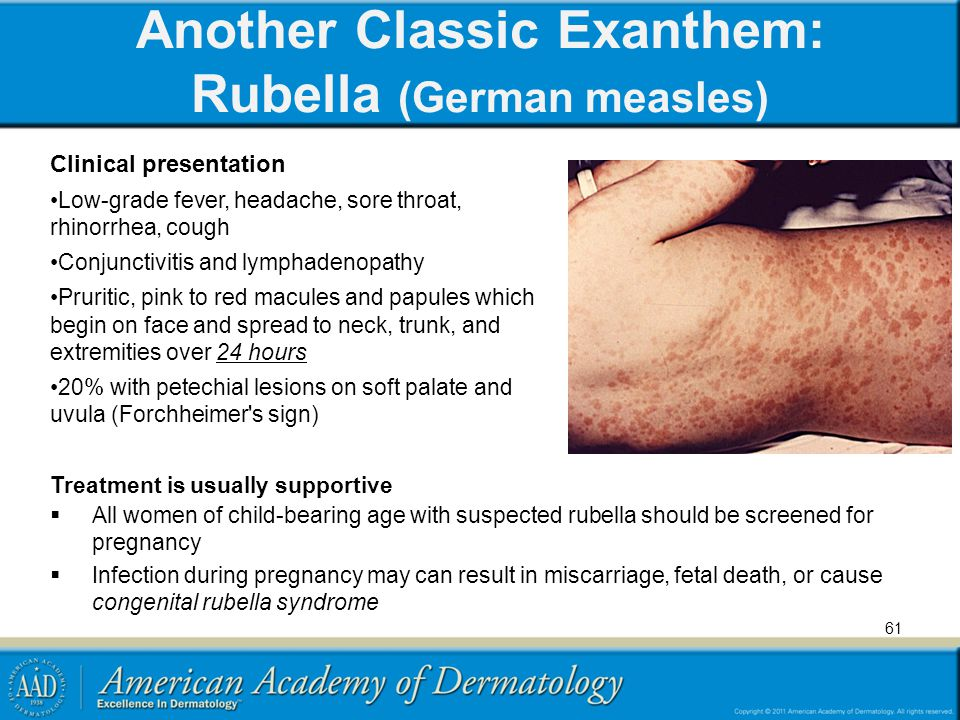 Another Classic Exanthem: Rubella (German measles)