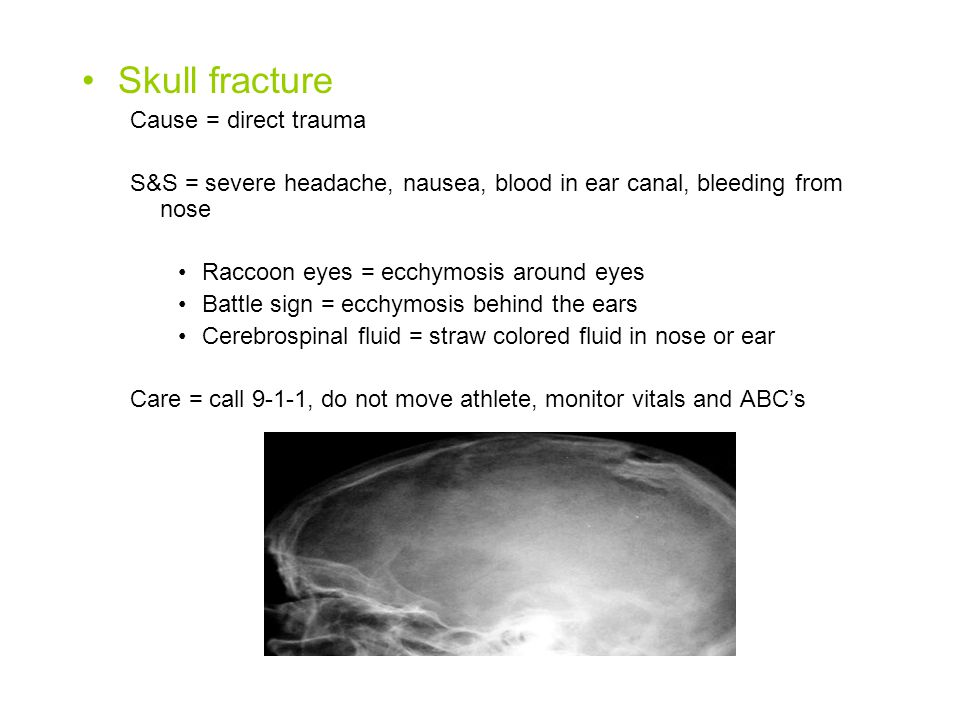 Skull fracture Cause = direct trauma