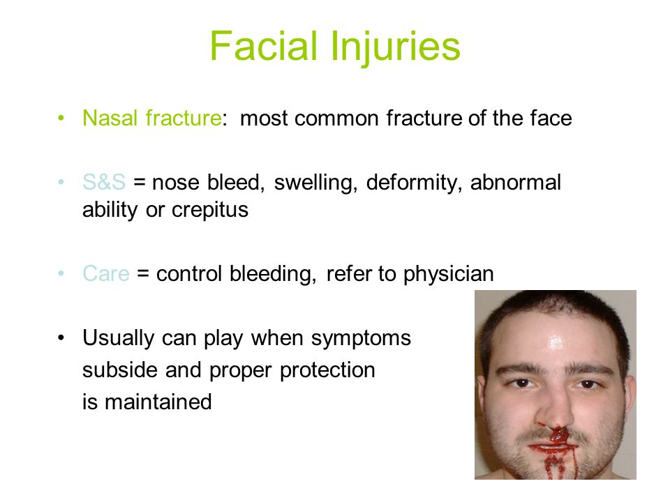 Facial Injuries Nasal fracture: most common fracture of the face