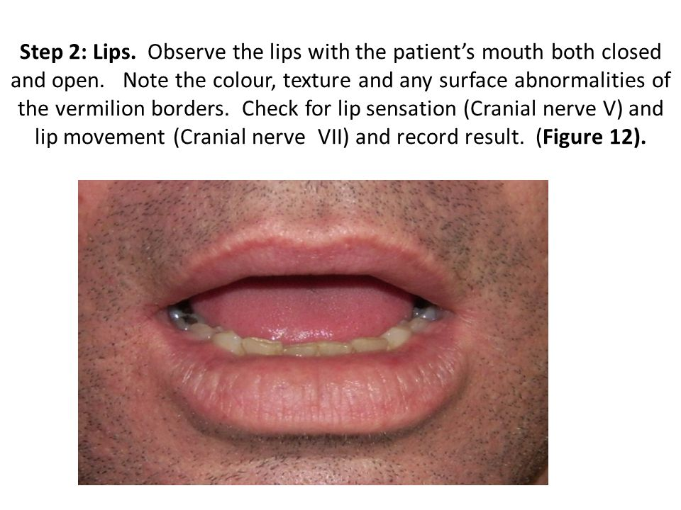 Step 2: Lips. Observe the lips with the patient's mouth both closed and open.