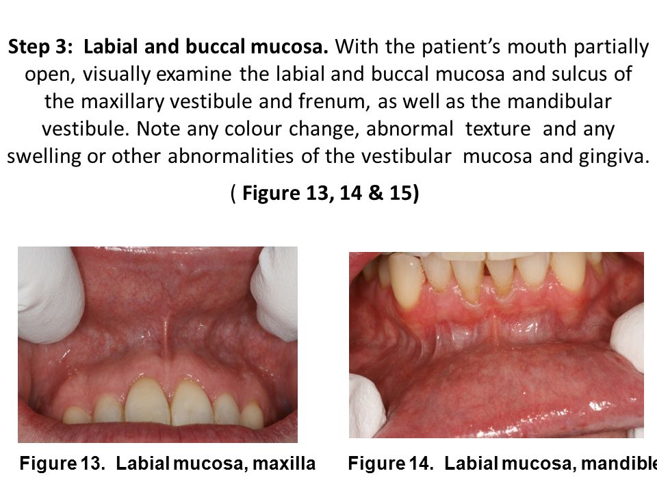 Step 3: Labial and buccal mucosa
