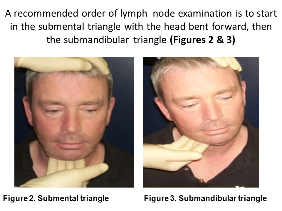 A recommended order of lymph node examination is to start in the submental triangle with the head bent forward, then the submandibular triangle (Figures 2 & 3)