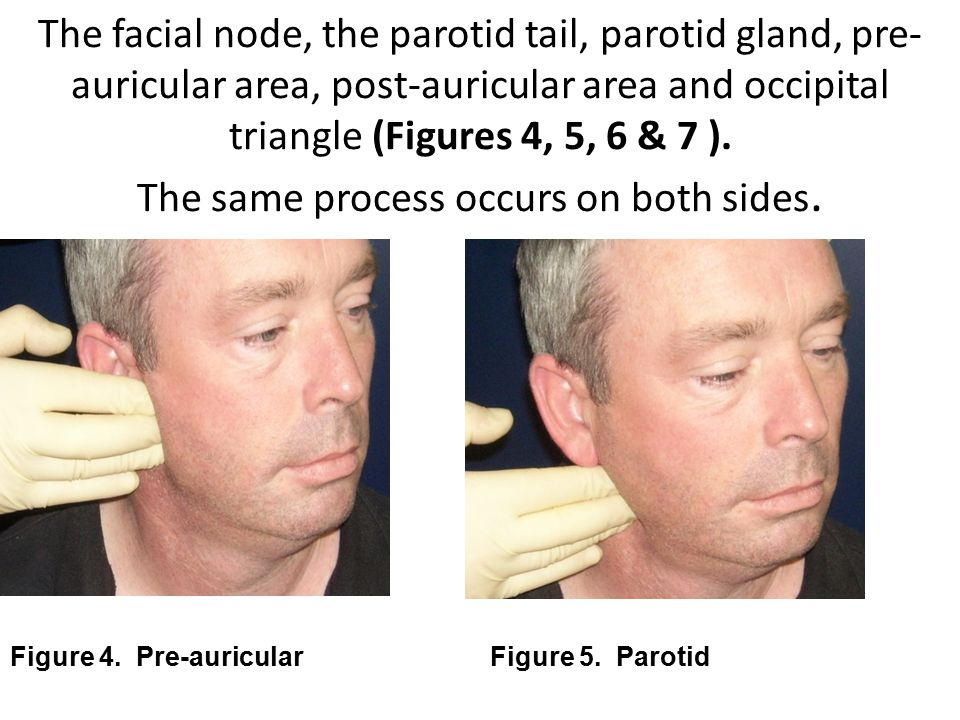 The facial node, the parotid tail, parotid gland, pre-auricular area, post-auricular area and occipital triangle (Figures 4, 5, 6 & 7 ). The same process occurs on both sides.