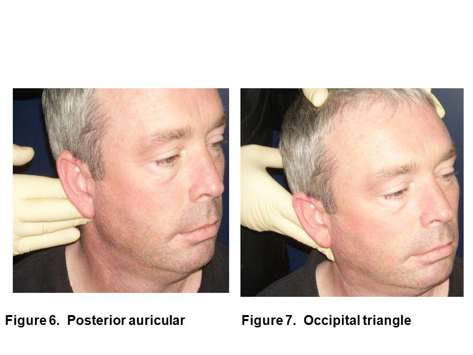 Figure 6. Posterior auricular Figure 7. Occipital triangle