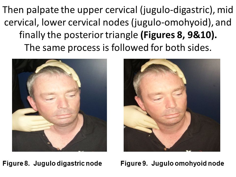 Then palpate the upper cervical (jugulo-digastric), mid cervical, lower cervical nodes (jugulo-omohyoid), and finally the posterior triangle (Figures 8, 9&10). The same process is followed for both sides.