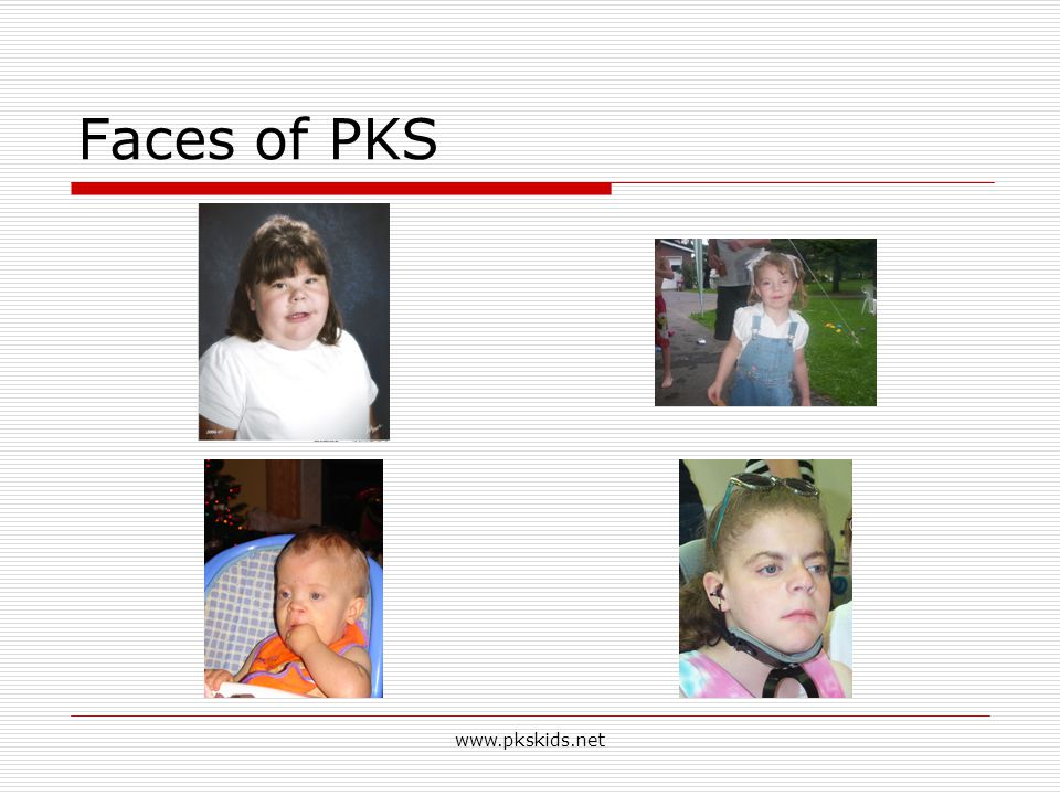 4/14/2017 Faces of PKS www.pkskids.net www.pkskids.net