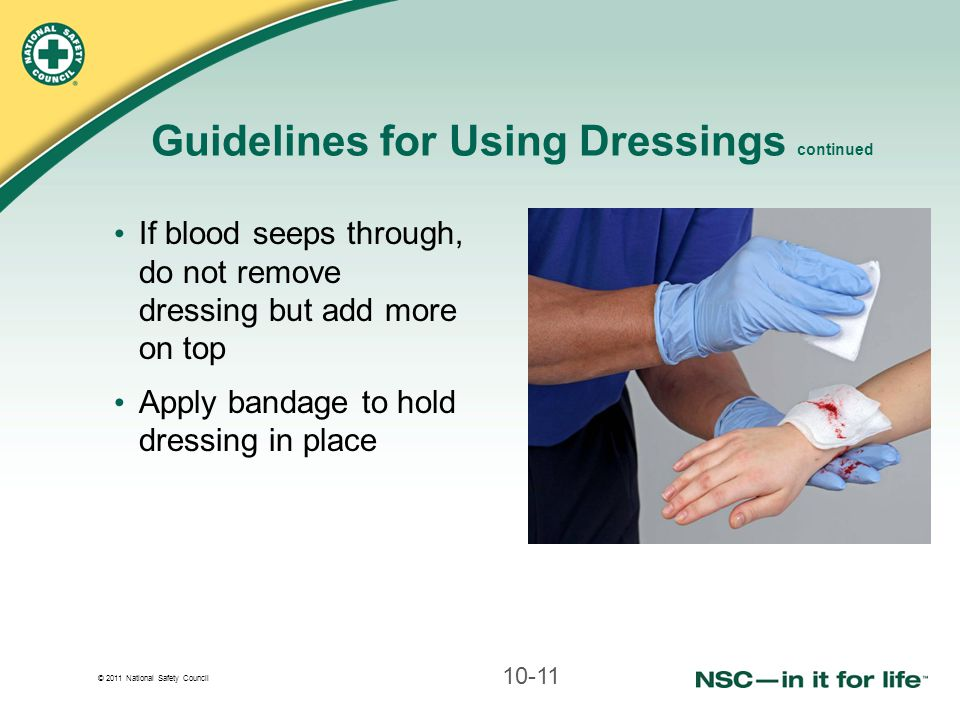 Guidelines for Using Dressings continued