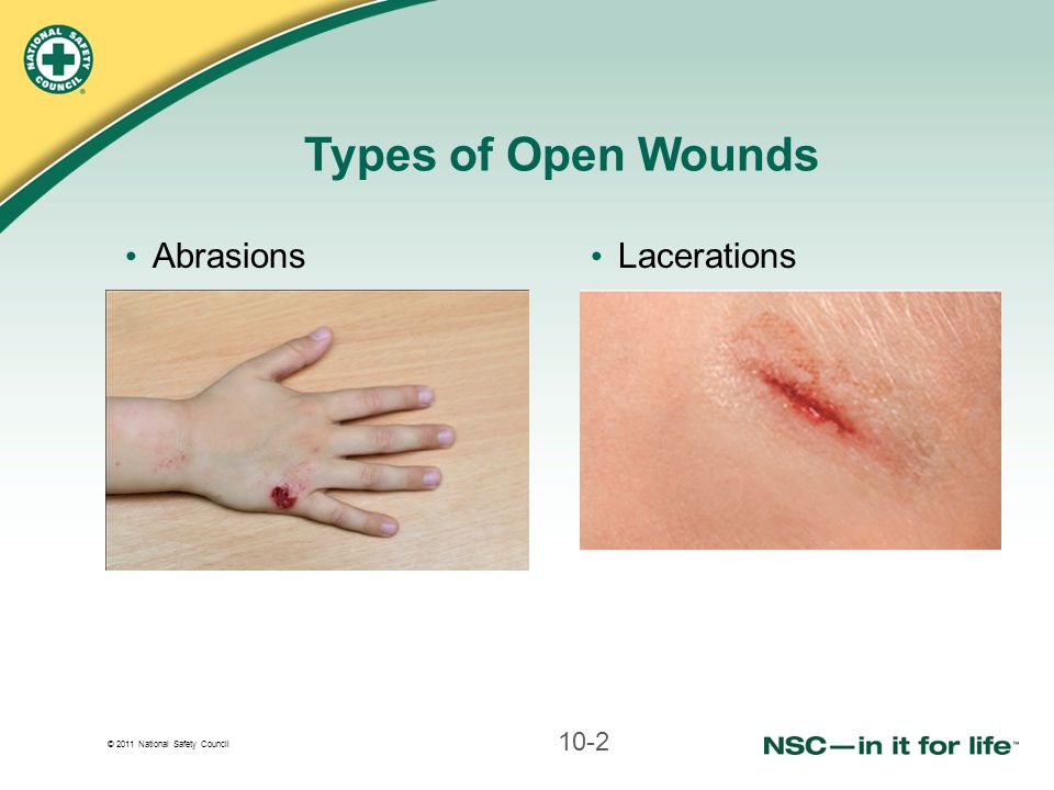Types of Open Wounds Abrasions Lacerations