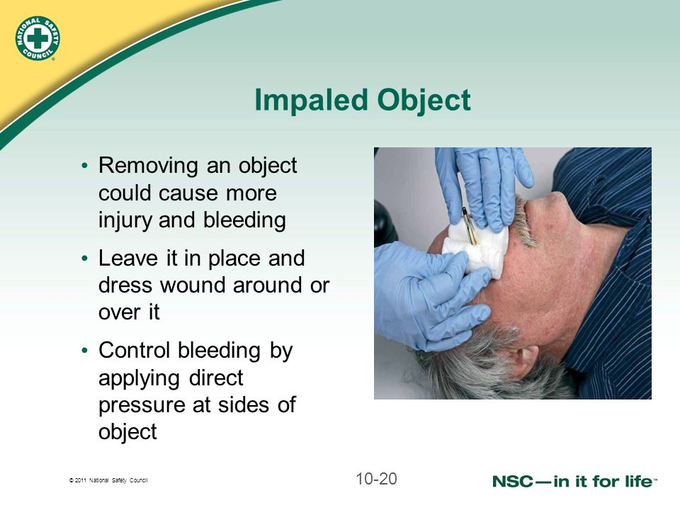 Impaled Object Removing an object could cause more injury and bleeding