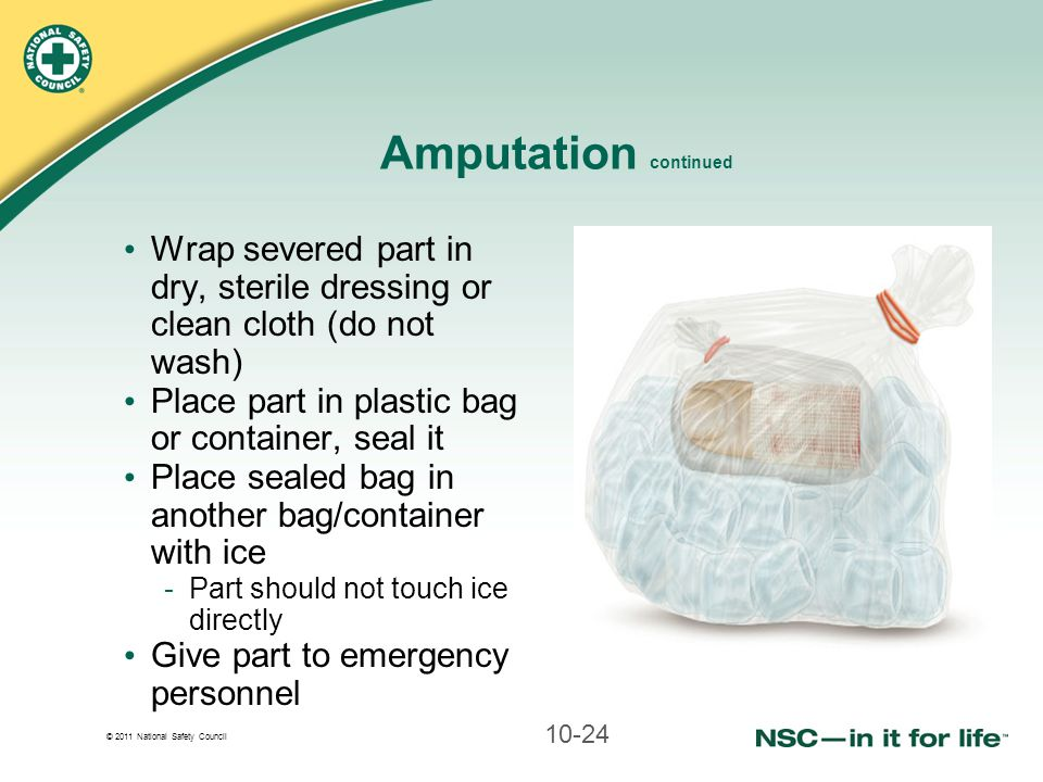 Amputation continued Wrap severed part in dry, sterile dressing or clean cloth (do not wash) Place part in plastic bag or container, seal it.