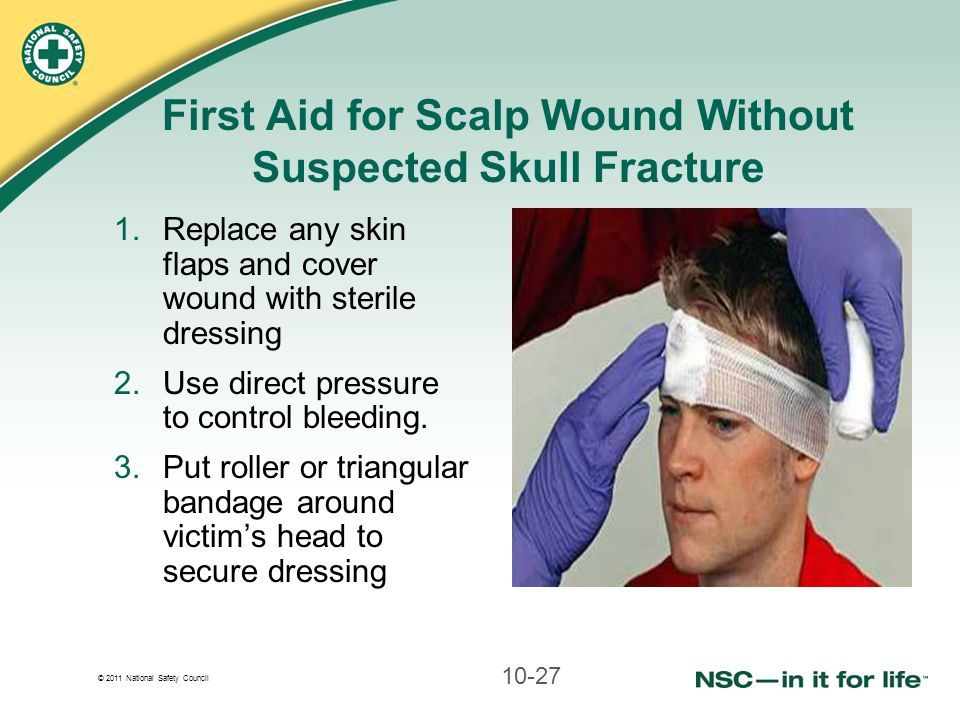 First Aid for Scalp Wound Without Suspected Skull Fracture