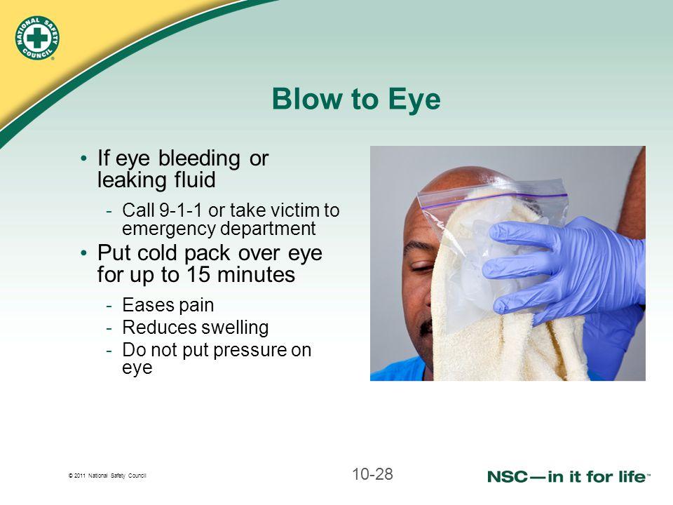 Blow to Eye If eye bleeding or leaking fluid