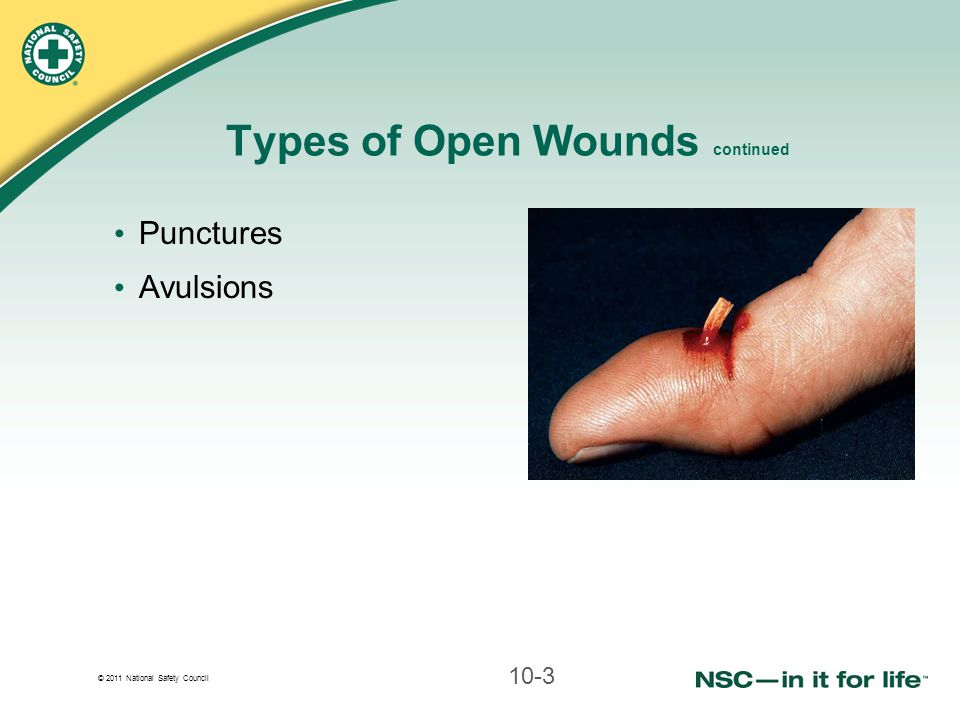 Types of Open Wounds continued