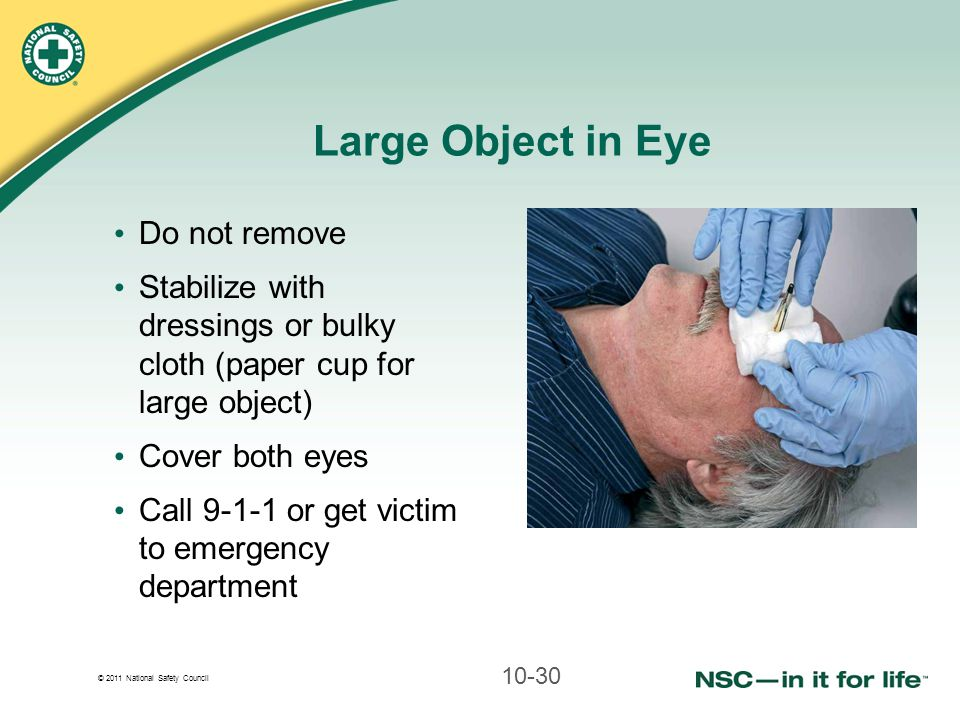 Large Object in Eye Do not remove