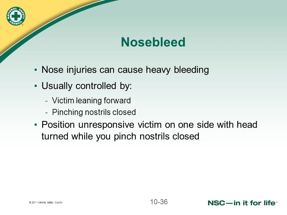 Nosebleed Nose injuries can cause heavy bleeding