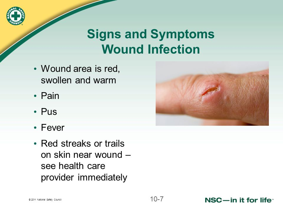 Signs and Symptoms Wound Infection